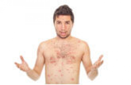 Skin disorders/eczema, psoriasis, dermatitis
